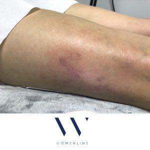 blood vessel removal womenline 3