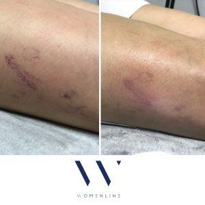 blood vessel removal womenline