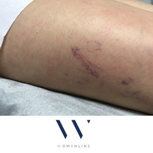 blood vessel removal womenline before