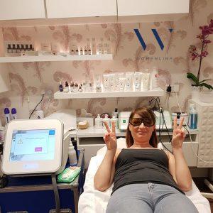 blood vessel removal womenline uk 6